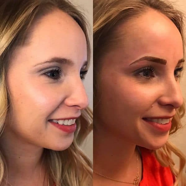 Microblading before and after blonde hair