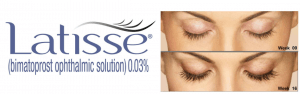 Latisse eyelash medication