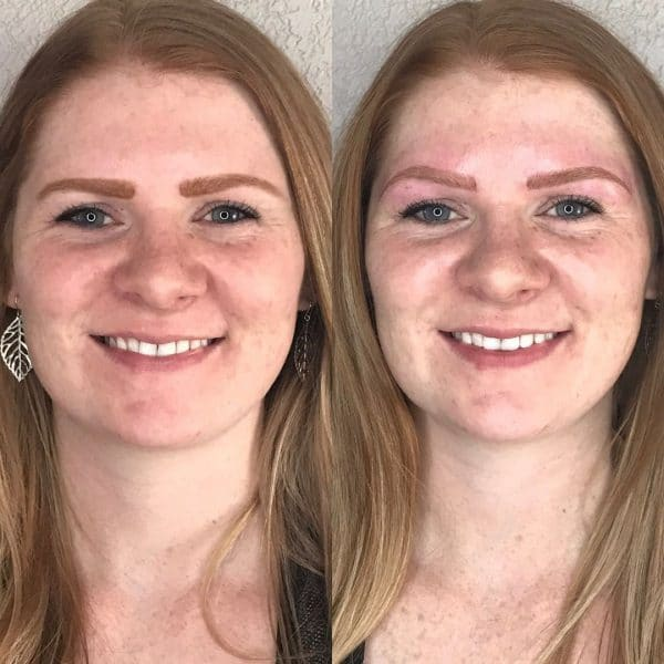 Read head microblading before and after