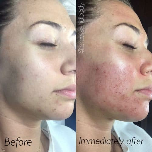 Side view microneedling before and after