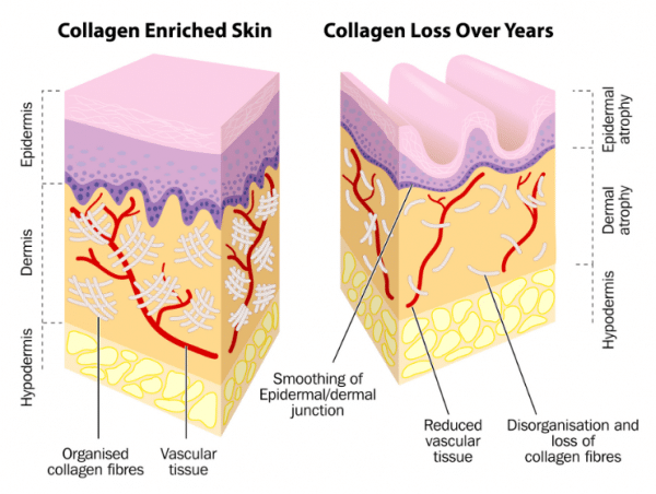 Vitamin c increases collagen in the dermis