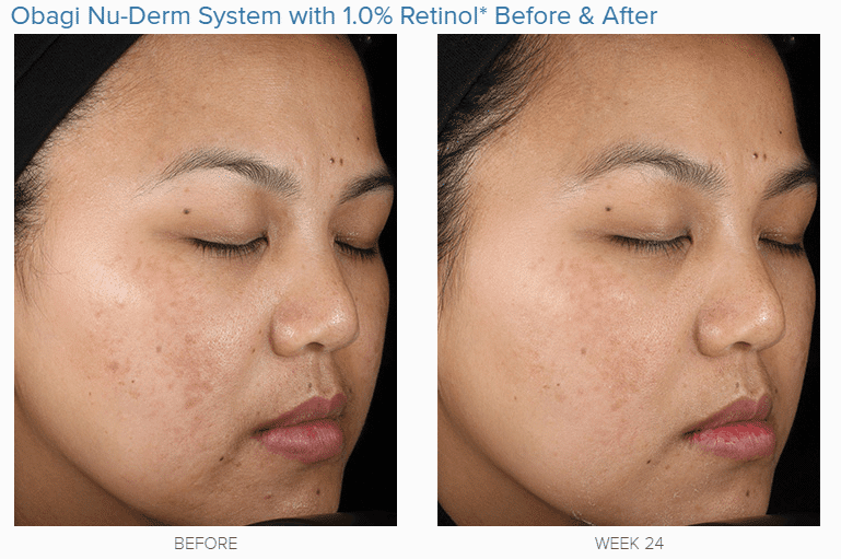 How To Use Retin A For Wrinkles Amp Why It Works