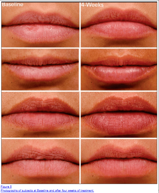 lip plumpers before and after photos