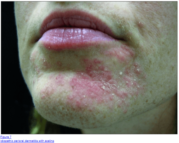 How to Treat Perioral Dermatitis Naturally & Quickly