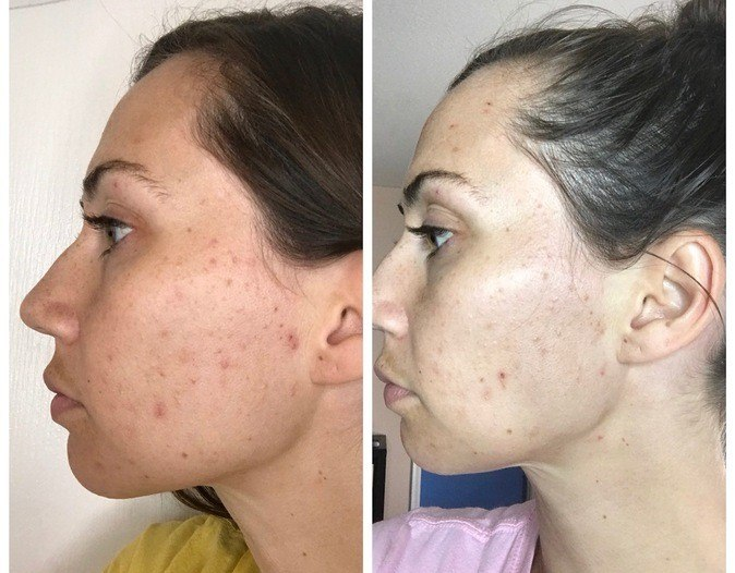 katrina super serum advance before and after